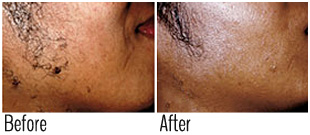 Does laser hair removal work (before and after)