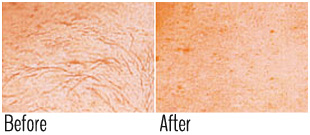 Safe laser hair removal dark skin (before and after)