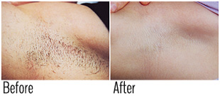 Safe laser hair removal light skin (before and after)