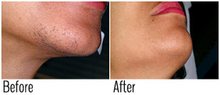 Safe laser hair removal dark skin 2 (before and after)