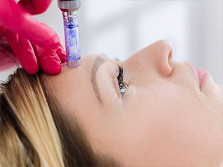 Eclipse Microneedling